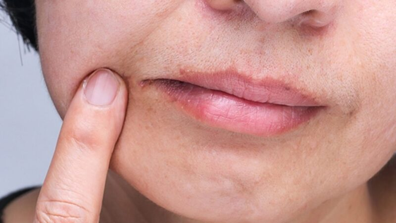 Fungal Lip Infection